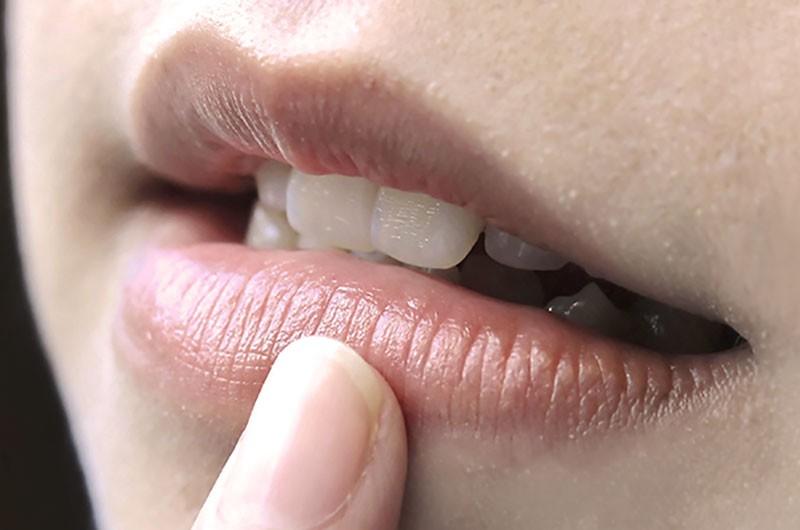 Không đánh son mà thấy môi có màu như này thì bạn cần chủ động đi khám ngay - Ảnh 2.