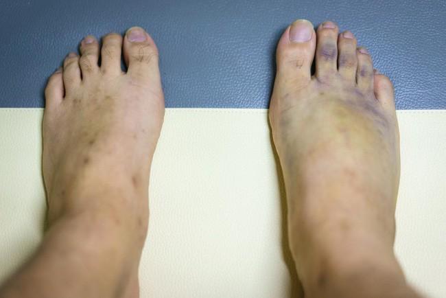 Chân bị bầm tím có thể do những bệnh đáng sợ gây ra vì vậy bạn cần thận trọng - Ảnh 1.
