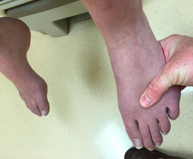 Chân bị bầm tím có thể do những bệnh đáng sợ gây ra vì vậy bạn cần thận trọng - Ảnh 2.