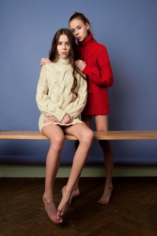 Ngây thơ nghe lời công ty người mẫu bảo nhịn ăn để xương gò má lộ ra, 2 chị em sinh đôi chỉ còn da bọc xương, nằm chờ chết - Ảnh 3.