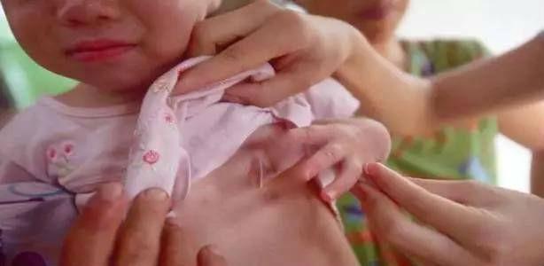 Phát hiện con 3 tuổi chảy máu vùng kín, cứ ngỡ con bị xâm hại nhưng lời bác sĩ nói khiến người mẹ ngỡ ngàng - Ảnh 2.