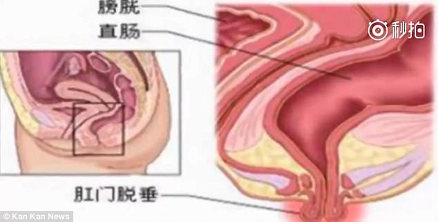 Dùng điện thoại khi đi vệ sinh, người đàn ông ở Trung Quốc bị lòi cả trực tràng ra ngoài 3
