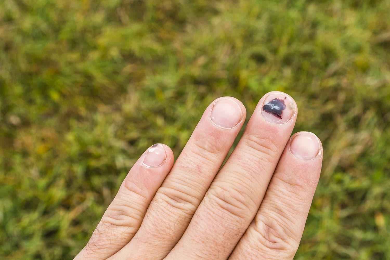 Thấy móng tay có 6 dấu hiệu này thì đừng nên chủ quan xem thường - Ảnh 4.