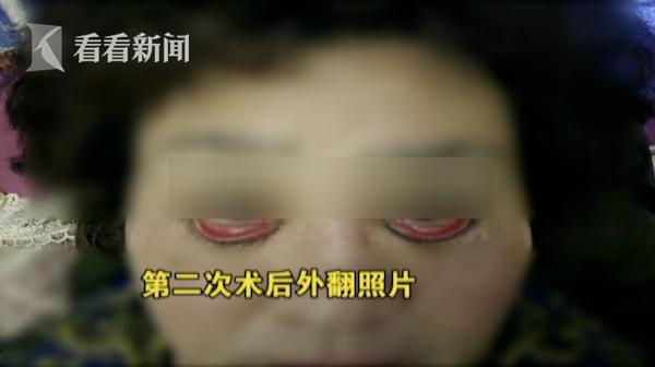 Ham mê phẫu thuật thẩm mỹ, người phụ nữ 60 tuổi không thể nhắm được mắt khi ngủ và có nguy cơ bị mù - Ảnh 2.
