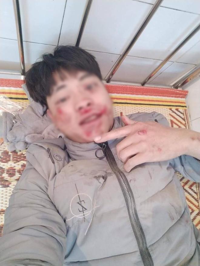 """Bị té xe đến chảy máu khắp mặt, thanh niên vẫn tươi cười selfie rồi đăng facebook: """"Quan trọng là cái thần thái!"""" - Ảnh 4."""