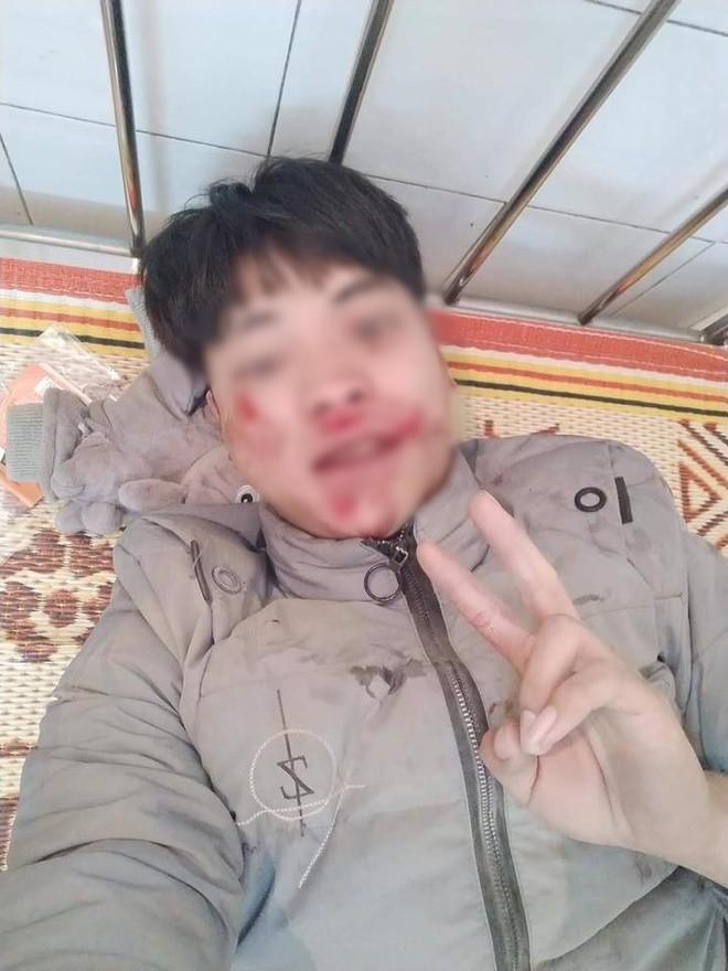 """Bị té xe đến chảy máu khắp mặt, thanh niên vẫn tươi cười selfie rồi đăng facebook: """"Quan trọng là cái thần thái!"""" - Ảnh 3."""