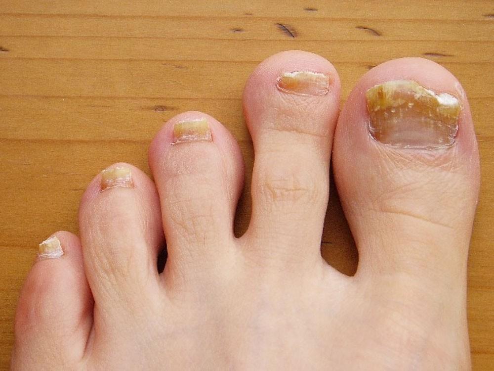 Móng chân tím đen là dấu hiệu cảnh báo sức khoẻ mà bạn không nên xem thường - Ảnh 1.
