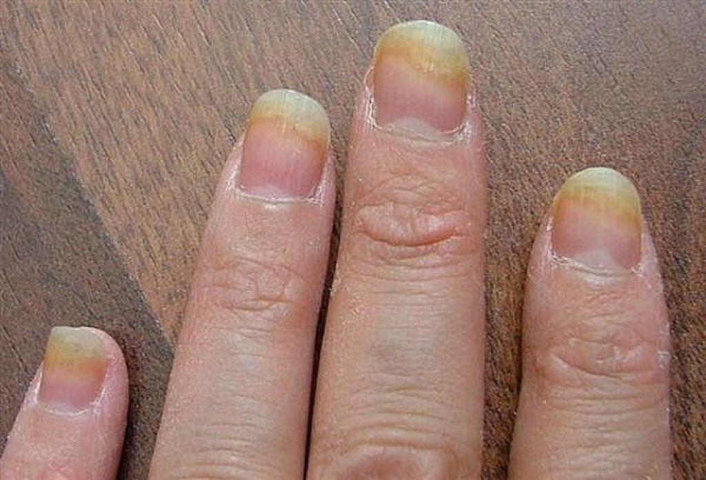 Móng chân tím đen là dấu hiệu cảnh báo sức khoẻ mà bạn không nên xem thường - Ảnh 4.