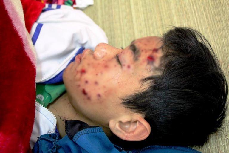 Nổ điện thoại khi đang sạc, nam sinh lớp 8 bị thương nặng - Ảnh 1.