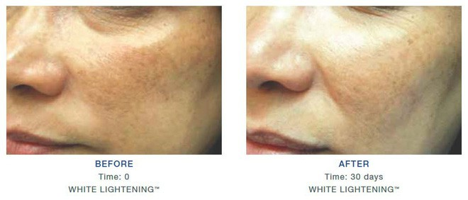 4 lỗi tẩy trang nghiêm trọng sau đây có thể bịt kín lỗ chân lông da bạn - Ảnh 6.