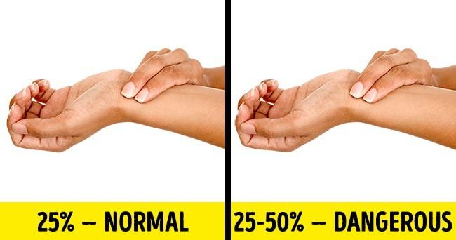 Tự kiểm tra sức khoẻ tại nhà xem cơ thể đang bình thường hay có bệnh - Ảnh 2.