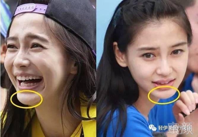 Những sao Hoa ngữ vướng nghi vấn độn cằm gây tranh cãi trên mạng xã hội
