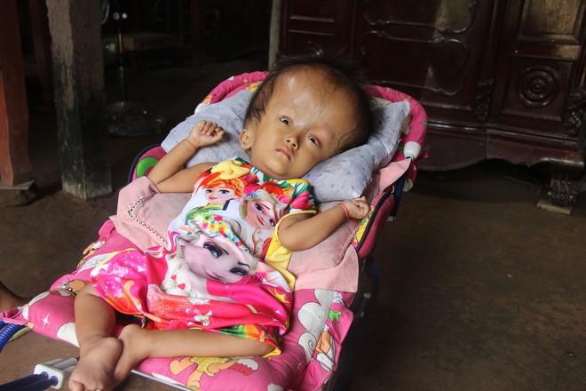 Phép màu kỳ diệu đến với cặp vợ chồng trẻ nuôi con gái 4 tuổi bị não úng thủy, đầu to gấp 3 lần trong năm mới - Ảnh 3.