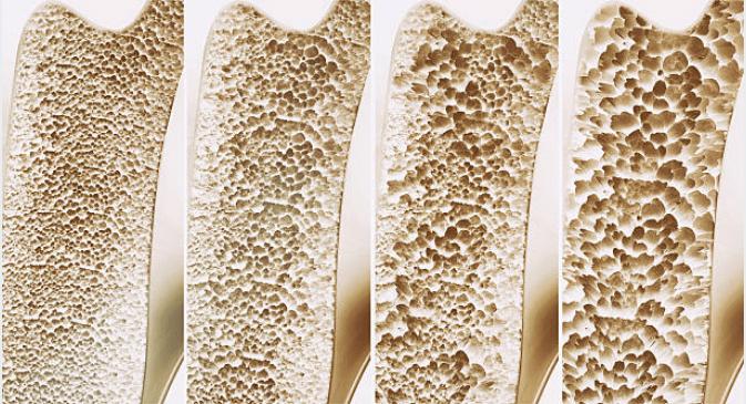 Đây là những căn bệnh bạn có nguy cơ mắc phải nếu để cơ thể thiếu hụt vitamin K - Ảnh 3.