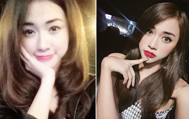 Các hot girl Việt nói gì khi bị dính nghi án dao kéo?
