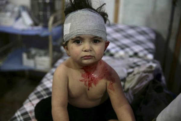 Thảm cảnh của những đứa trẻ tại thánh địa chết chóc Syria: Nỗi đau của các em vẫn chưa có hồi kết - Ảnh 6.