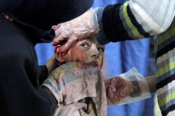 Thảm cảnh của những đứa trẻ tại thánh địa chết chóc Syria: Nỗi đau của các em vẫn chưa có hồi kết - Ảnh 12.