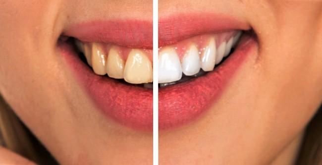 8 mẹo vặt hữu ích giúp bạn luôn nói không với bệnh sâu răng - Ảnh 9.