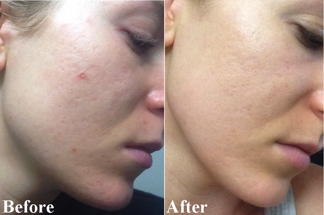 Vừa làm sạch sâu lại làm sáng da, đây chính là 5 sản phẩm chứa Mandelic Acid bạn nên cập nhật ngay cho Tết này - Ảnh 11.