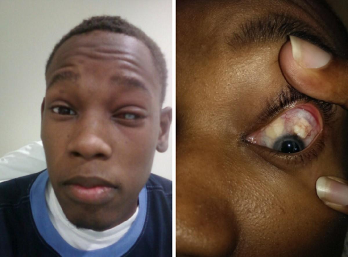 Chàng trai 25 tuổi bị mù một bên mắt vì đeo kính áp tròng giá rẻ - Ảnh 2.