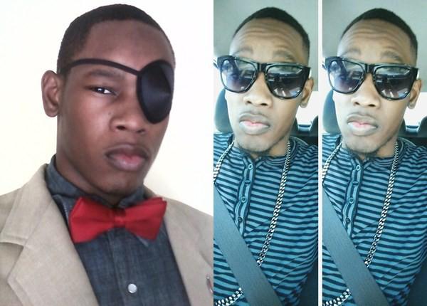 Chàng trai 25 tuổi bị mù một bên mắt vì đeo kính áp tròng giá rẻ - Ảnh 3.