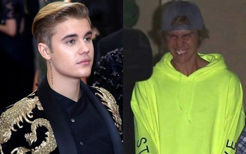 Hành trình lao dốc nhan sắc của Justin Bieber: Hoàng tử Baby năm xưa giờ đây mặt mũi xám xịt, mụn nổi chi chít - Ảnh 23.