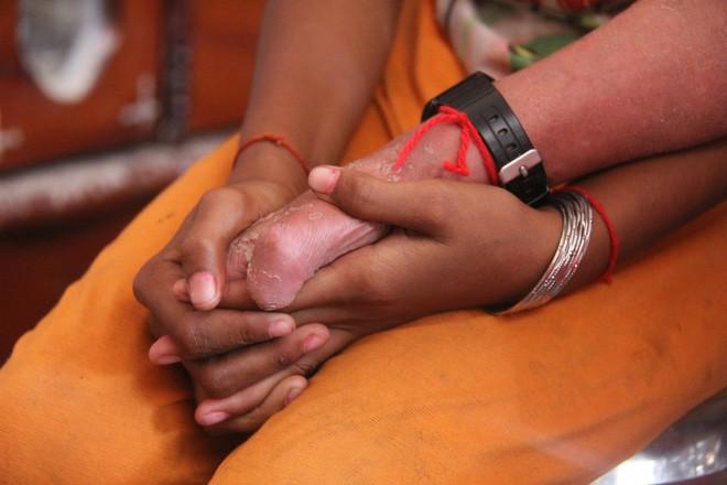 Bố mất chưa giỗ đầu thì mẹ qua đời, em gái 10 tuổi đau đớn nhìn anh trai mắc bệnh hiểm nghèo mà không có tiền chữa - Ảnh 8.