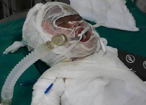 Thương xót bé gái 3 tuổi bị bỏng nặng khi rơi vào hố vôi đang sôi - Ảnh 1.