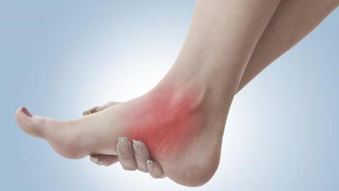 Bong gân – Làm sao để sơ cứu đúng cách, tránh ảnh hưởng chức năng xương khớp? - Ảnh 1.