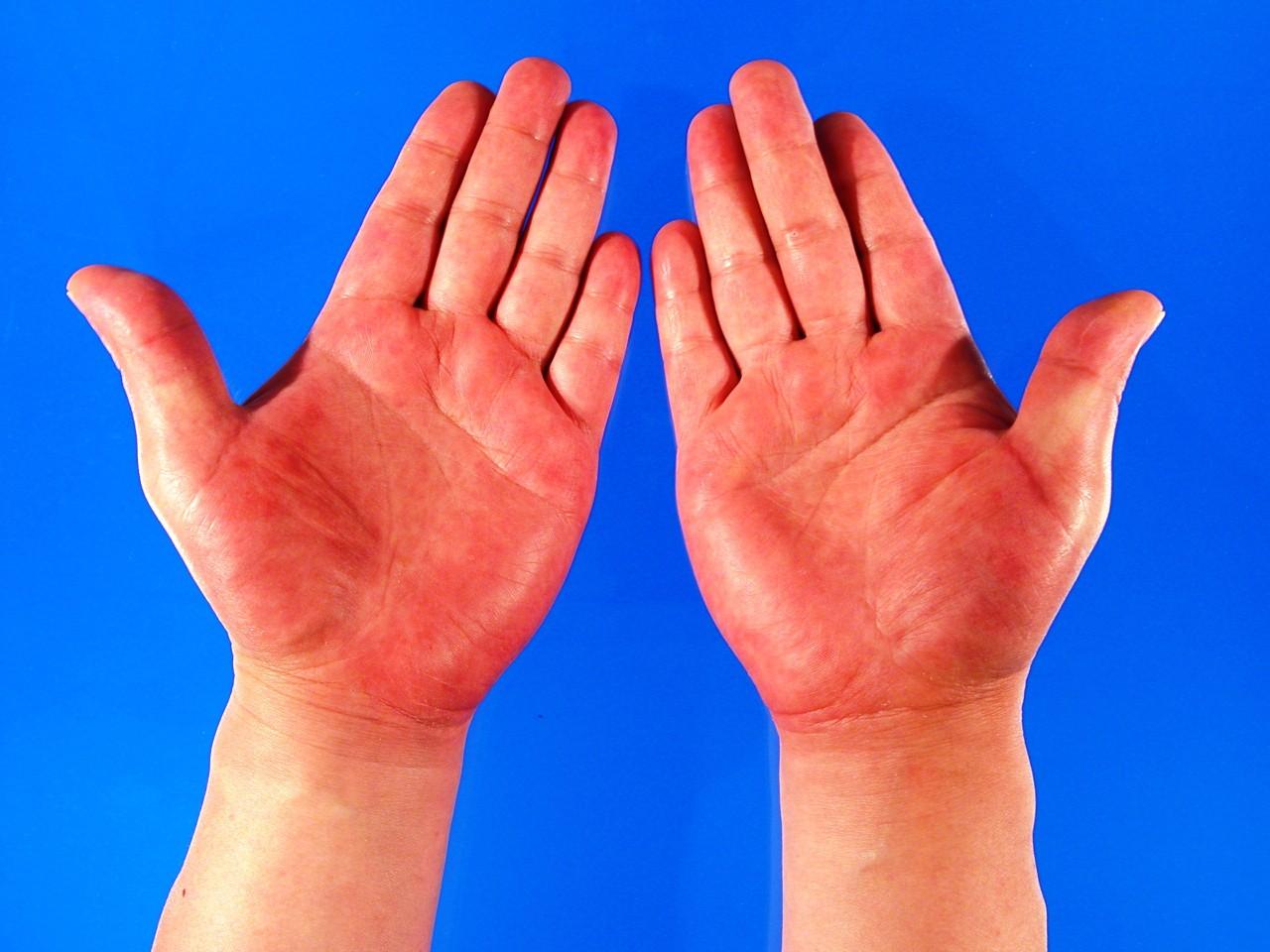Nhìn màu sắc lòng bàn tay để nhận biết tình trạng sức khoẻ hiện tại của bạn - Ảnh 1.