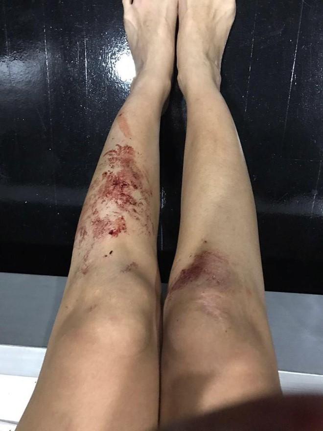 Nữ DJ gợi cảm đăng hình ảnh tàn tạ, rớm máu và sự thật gây sốc - Ảnh 2.
