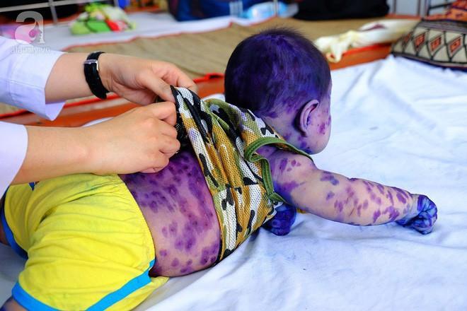 Mẹ không chích ngừa trước sinh, hàng loạt trẻ dưới 3 tháng tuổi mắc bệnh thủy đậu nhập viện tại TP.HCM - Ảnh 2.