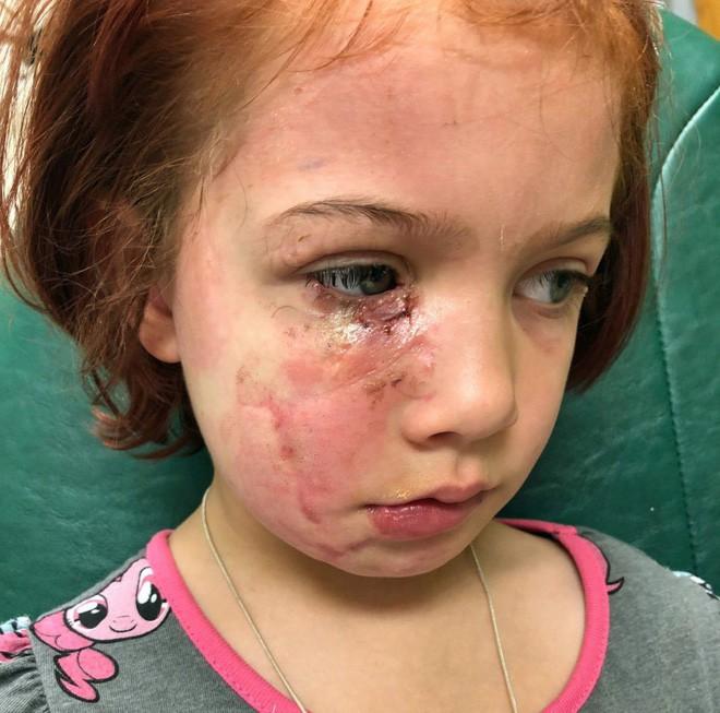 Bị chó cắn đến rách mặt, cô bé 6 tuổi mỗi ngày đều chụp ảnh selfie để học cách chấp nhận diện mạo mới của mình - Ảnh 2.