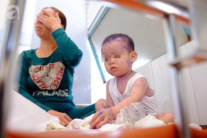 Mẹ không chích ngừa trước sinh, hàng loạt trẻ dưới 3 tháng tuổi mắc bệnh thủy đậu nhập viện tại TP.HCM - Ảnh 3.