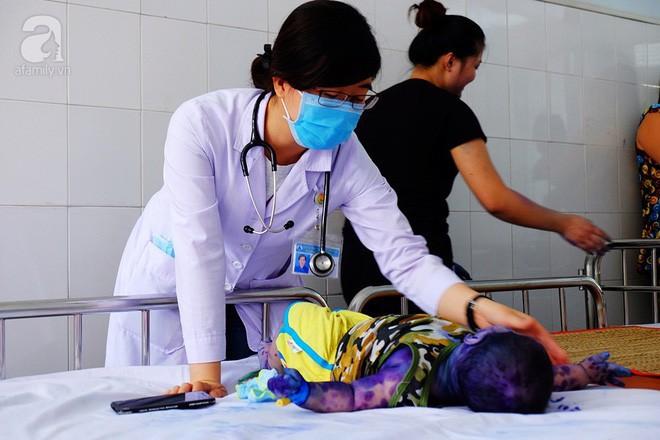 Mẹ không chích ngừa trước sinh, hàng loạt trẻ dưới 3 tháng tuổi mắc bệnh thủy đậu nhập viện tại TP.HCM - Ảnh 5.