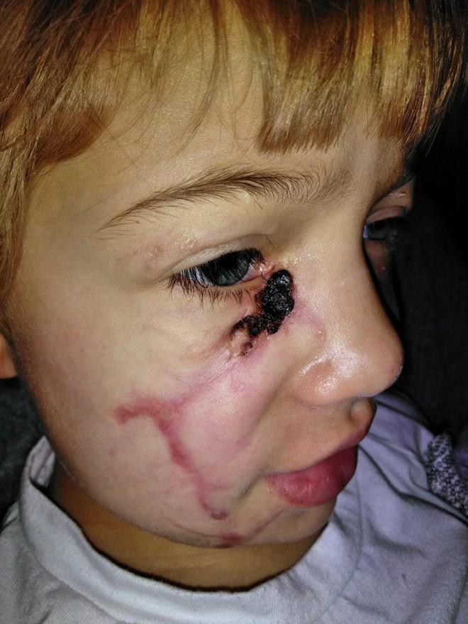 Bị chó cắn đến rách mặt, cô bé 6 tuổi mỗi ngày đều chụp ảnh selfie để học cách chấp nhận diện mạo mới của mình - Ảnh 5.