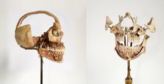 Nhổ răng bằng kìm, răng giả làm từ cao su... và sự thật bảo tàng nha khoa rùng rợn nhất nước Anh có gì? - Ảnh 1.