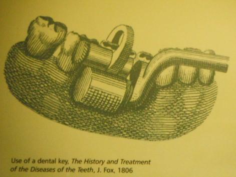 Nhổ răng bằng kìm, răng giả làm từ cao su... và sự thật bảo tàng nha khoa rùng rợn nhất nước Anh có gì? - Ảnh 4.