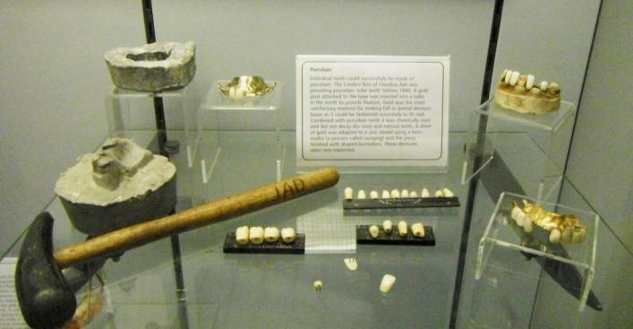 Nhổ răng bằng kìm, răng giả làm từ cao su... và sự thật bảo tàng nha khoa rùng rợn nhất nước Anh có gì? - Ảnh 8.