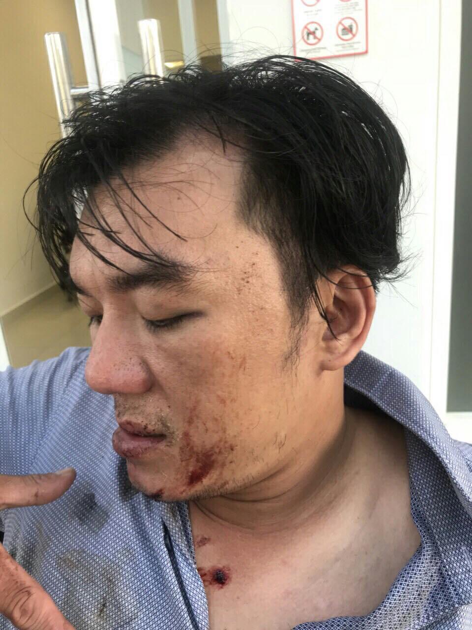 Khách tố bị nhân viên đuổi đánh dã man sau bữa ăn ở Đà Nẵng, quản lý nhà hàng nói gì? - Ảnh 1.