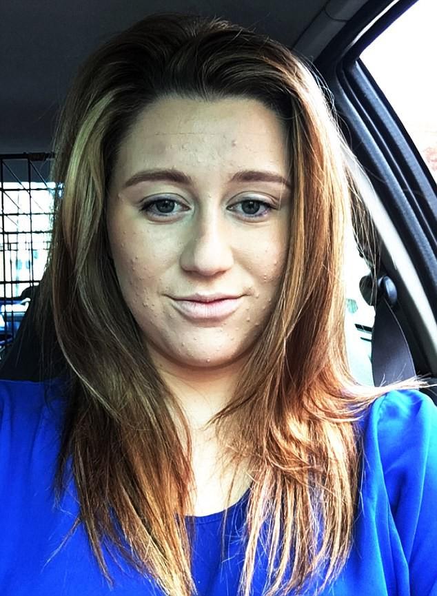 Cô gái 24 tuổi ở Anh phải nhập viện vì viêm tụy do sử dụng sai thuốc trị mụn - Ảnh 3.