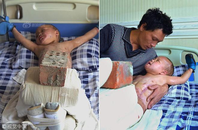 Xót xa chuyện người đàn ông bị vợ bỏ rơi, mỗi ngày dùng 15kg gạch đè lên chân đứa con 5 tuổi để chữa bỏng - Ảnh 1.