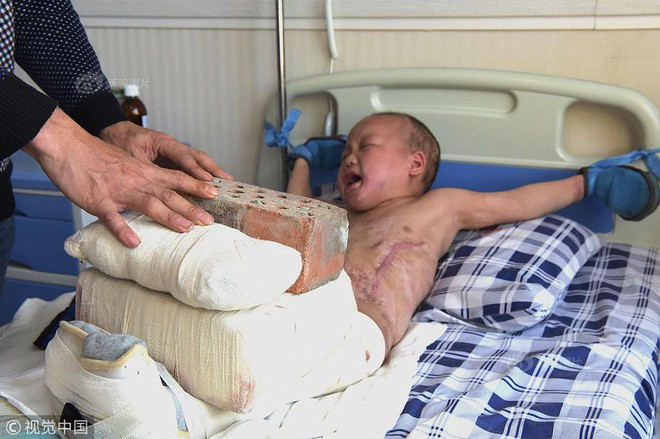 Xót xa chuyện người đàn ông bị vợ bỏ rơi, mỗi ngày dùng 15kg gạch đè lên chân đứa con 5 tuổi để chữa bỏng - Ảnh 4.