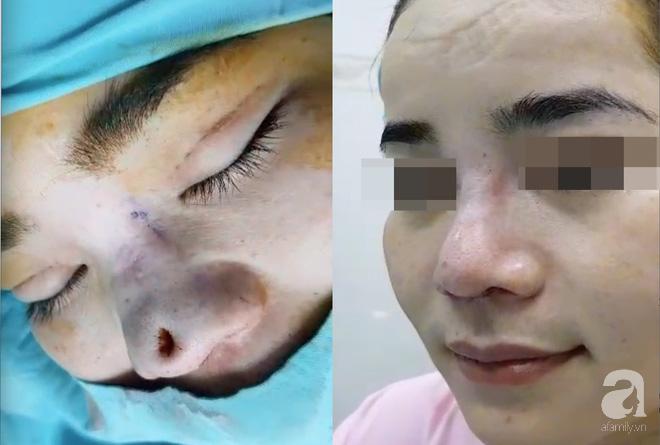 Một nạn nhân bị thủng mũi sau khi nâng mũi bằng chỉ.