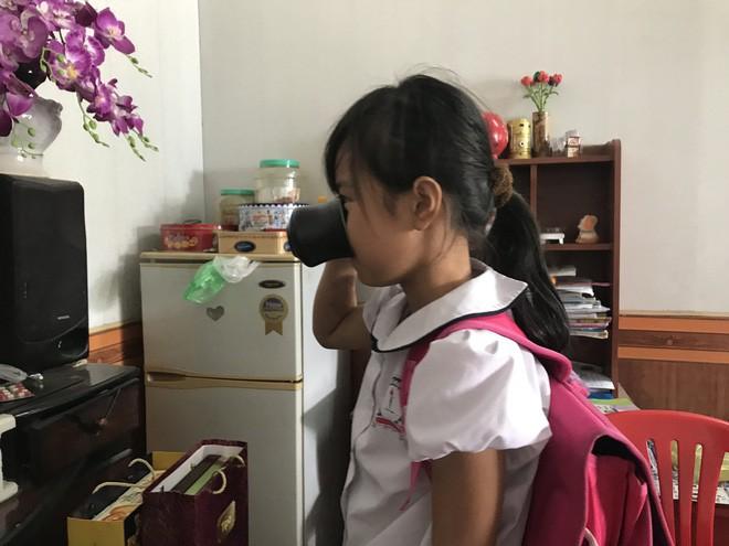 Cháu Phương A. thuật lại việc bị cô giáo ép uống nước giẻ lau bảng.