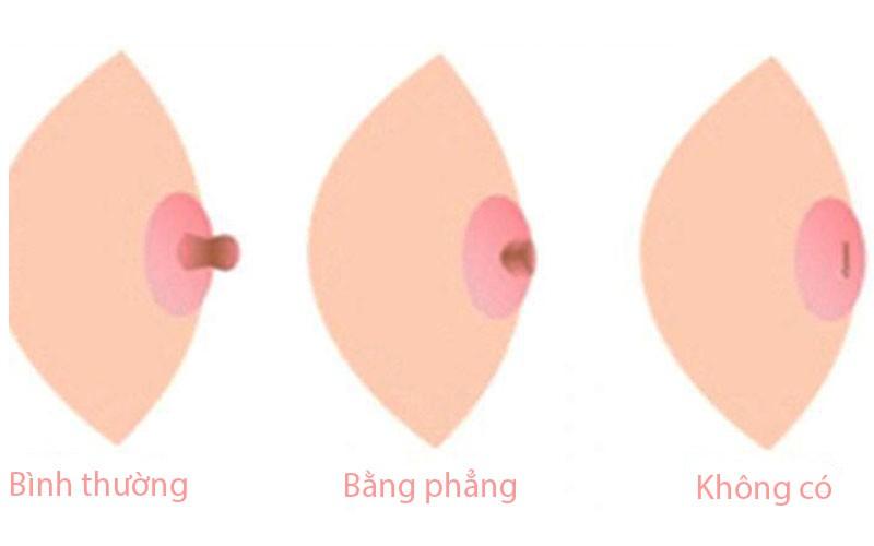 Thấy có những dấu hiệu này trên ngực thì hội con gái chớ chủ quan mà cần đi khám ngay - Ảnh 4.
