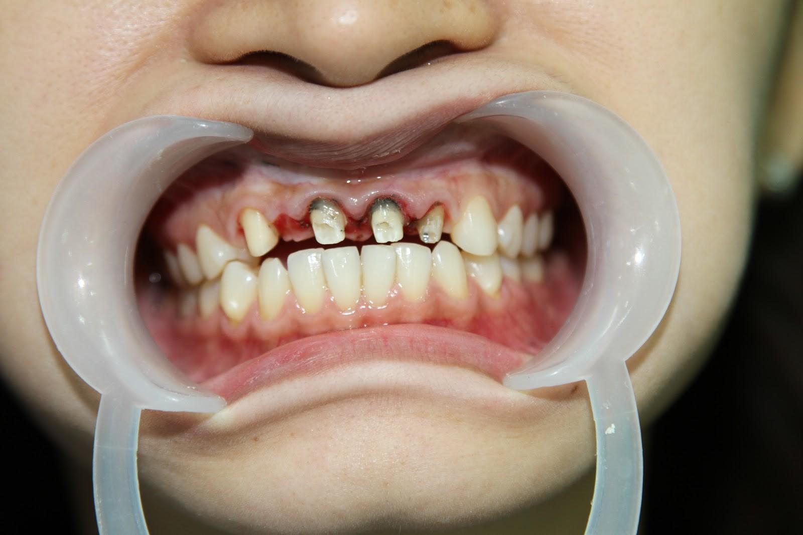 Bọc răng sứ không đảm bảo chất lượng, bạn phải đối mặt với những nguy