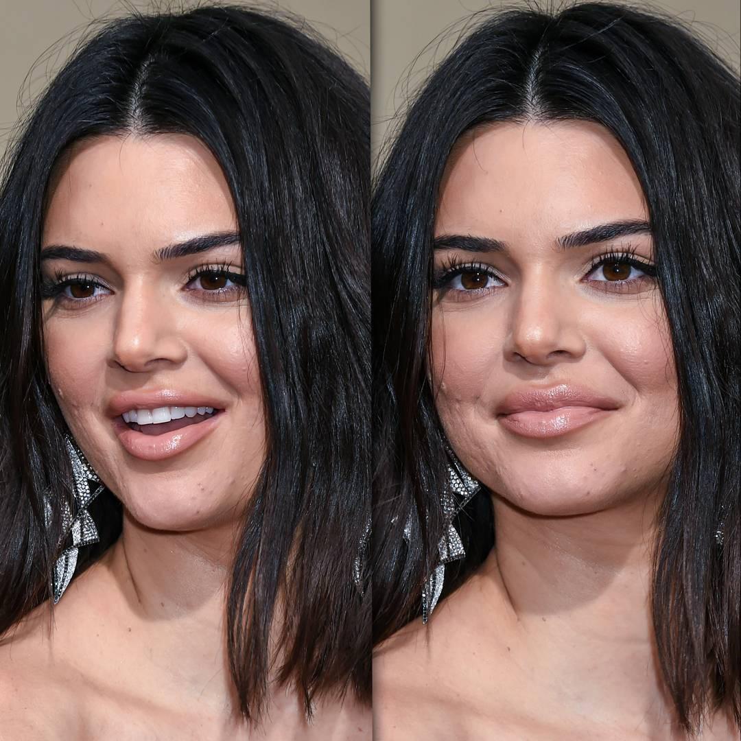 Dù Kendall Jenner lộng lẫy nhất nhì thảm đỏ Quả Cầu Vàng nhưng làn da mụn sần sùi của cô mới là tâm điểm bàn tán - Ảnh 6.