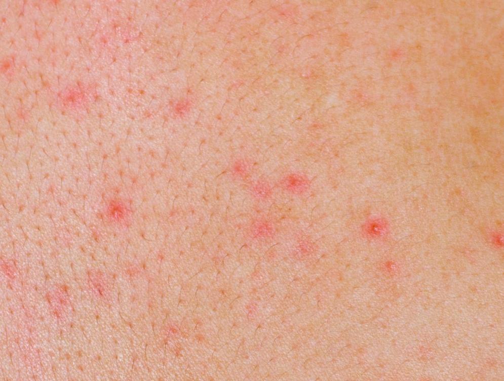 6 dấu hiệu cảnh báo bệnh ung thư máu mà bạn không nên bỏ qua - Ảnh 3.