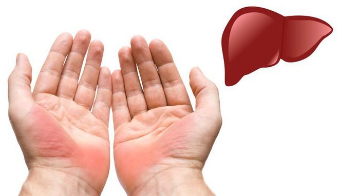 Hãy xòe đôi bàn tay ra trước mặt: Bạn có thể đoán bệnh qua 7 dấu hiệu này trên tay - Ảnh 1.